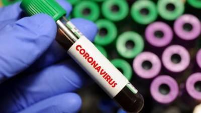 В Украине за сутки зафиксировано 717 новых случаев заболевания Covid-19